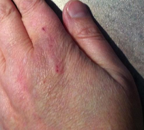 Bite & Bruise
